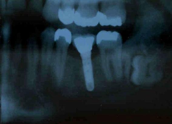 Das Foto zeigt ein seitliches Röntgenbild eines gesetzten Implantates im Kieferknochen.